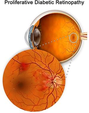 Proliferative Diabetic Retinopathy Retina Group Washington