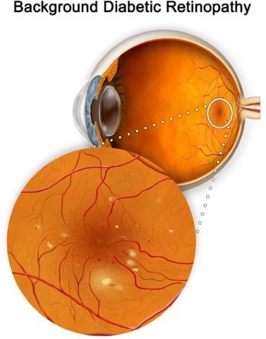 Background Diabetic Retinopathy Retina Group of Washington