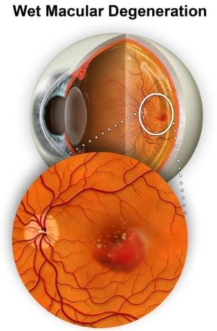 Wet Macular Degeneration Retina Group of Washington