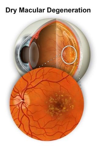 Dry Macular Degeneration Retina Group Washington