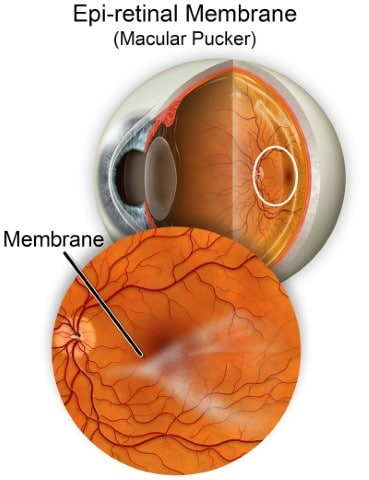 Macular Pucker Retina Group of Washington