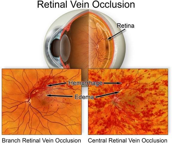 Retinal Vein Occlusion Retina Group of Washington