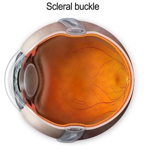Scleral Buckle Retina Group of Washington
